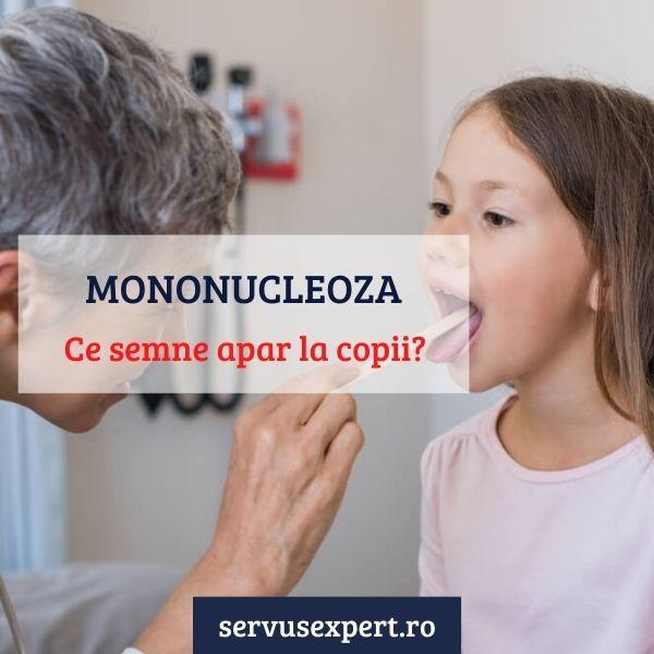mononucleoza infecțioasă