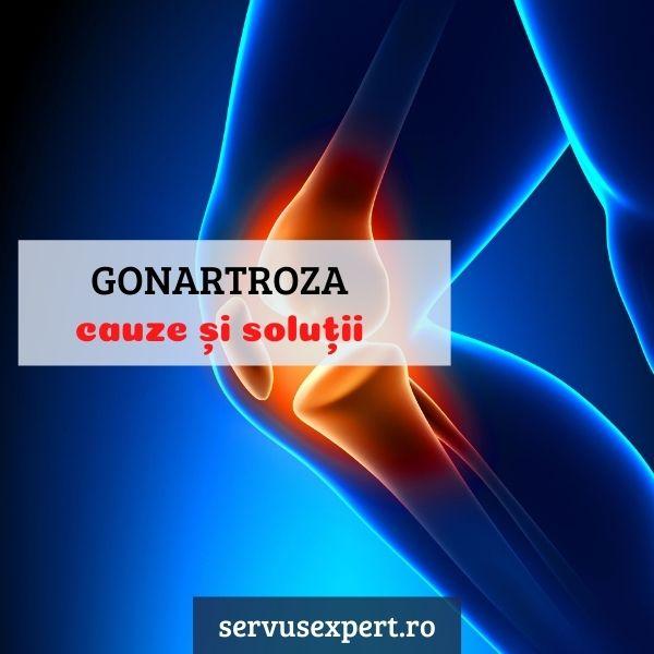 Tratament gonartroza osteoartrita genunchiului