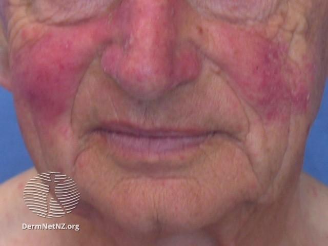 rozaceea și dermatita seboreica