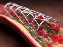 stent inima, stent coronarian